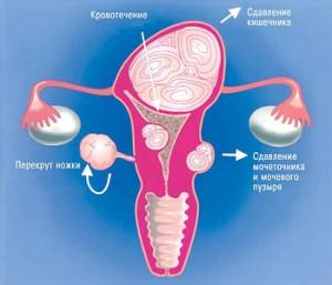 Различные виды миом матки – народные методы лечения