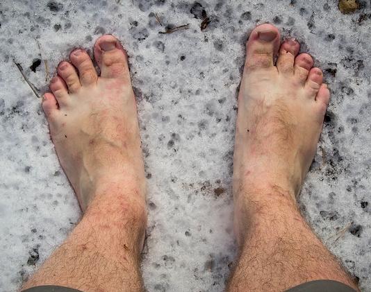 Варикоз обеих ног