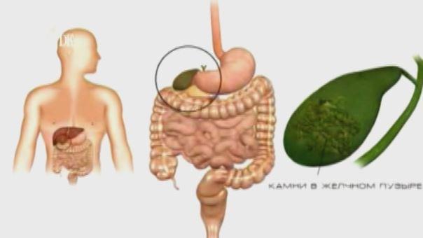 Кисты щитовидной железы причины лечение народными средствами
