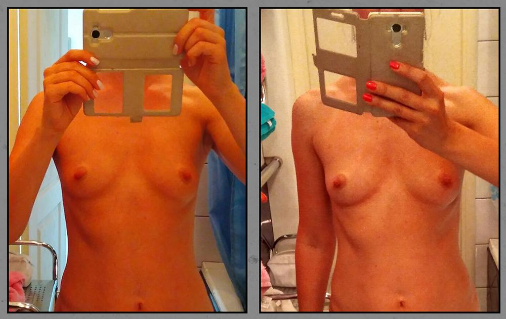 Как увеличить грудь на размер за месяц
