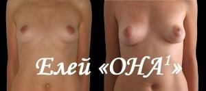 Увеличение груди без операции, фото ДО (слева) и ПОСЛЕ (справа) – анфас