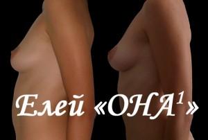 Фото ДО (слева) и ПОСЛЕ ОНА1 (справа)