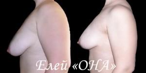 Восстановить форму груди – поможет елей «ОНА1» и «ОНА2»